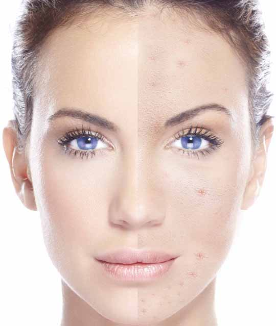 Skin Types - acne oily and blemished 1