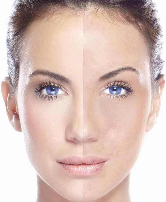 Skin Types - dry skin