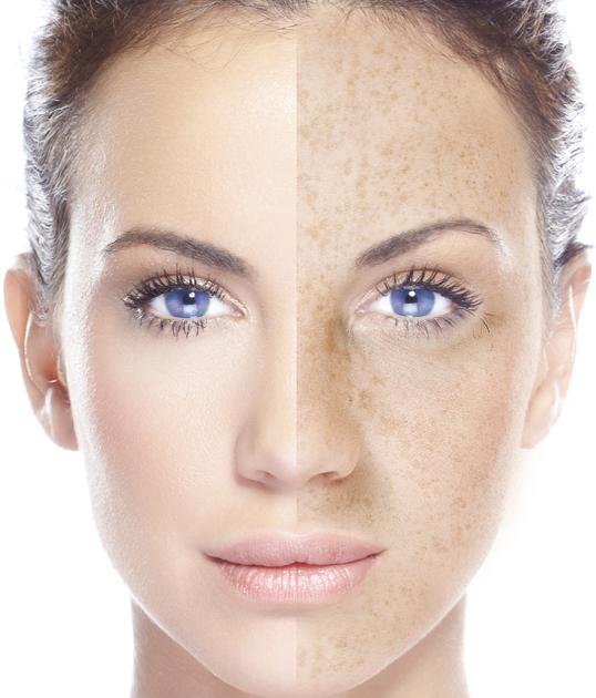 Skin Types - pigmentation
